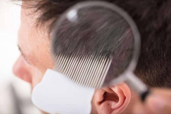 原创脱发就是肾脏不佳?究竟是什么原理,一文告知