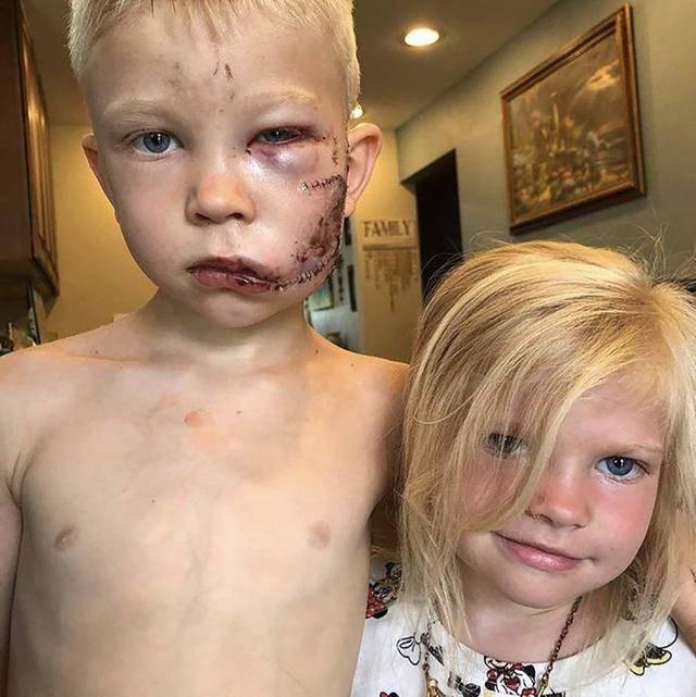 6岁儿童获WBC荣誉拳击冠军称号,与恶狗勇敢搏斗救妹,脸颊缝70针
