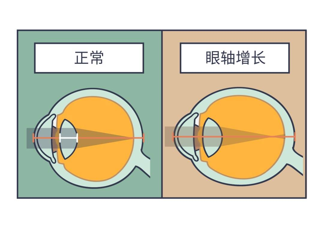 原创孩子成绩下降?别忽视近视的可能!每位家长都该关注儿童视力健康