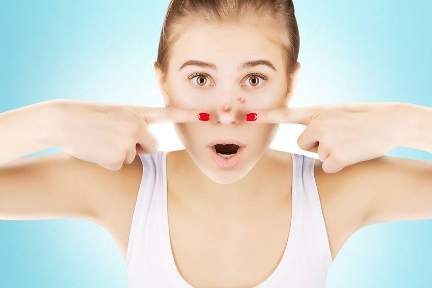 鼻子两侧挤出的白色分泌物是什么?提醒:别用手抠,教你处理方法