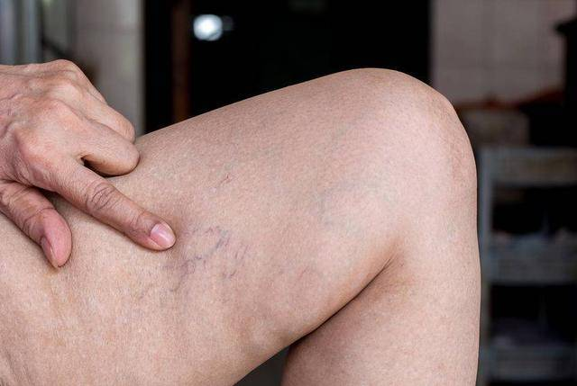 体内有血栓,四肢先知?提醒:四肢出现这4种异常,是血栓信号!