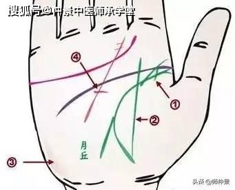 尾指、无名指不能自由屈伸总是弯曲是风湿性