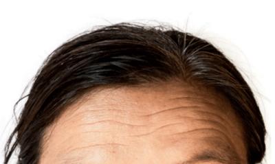 额头上有皱纹的面相好欠好