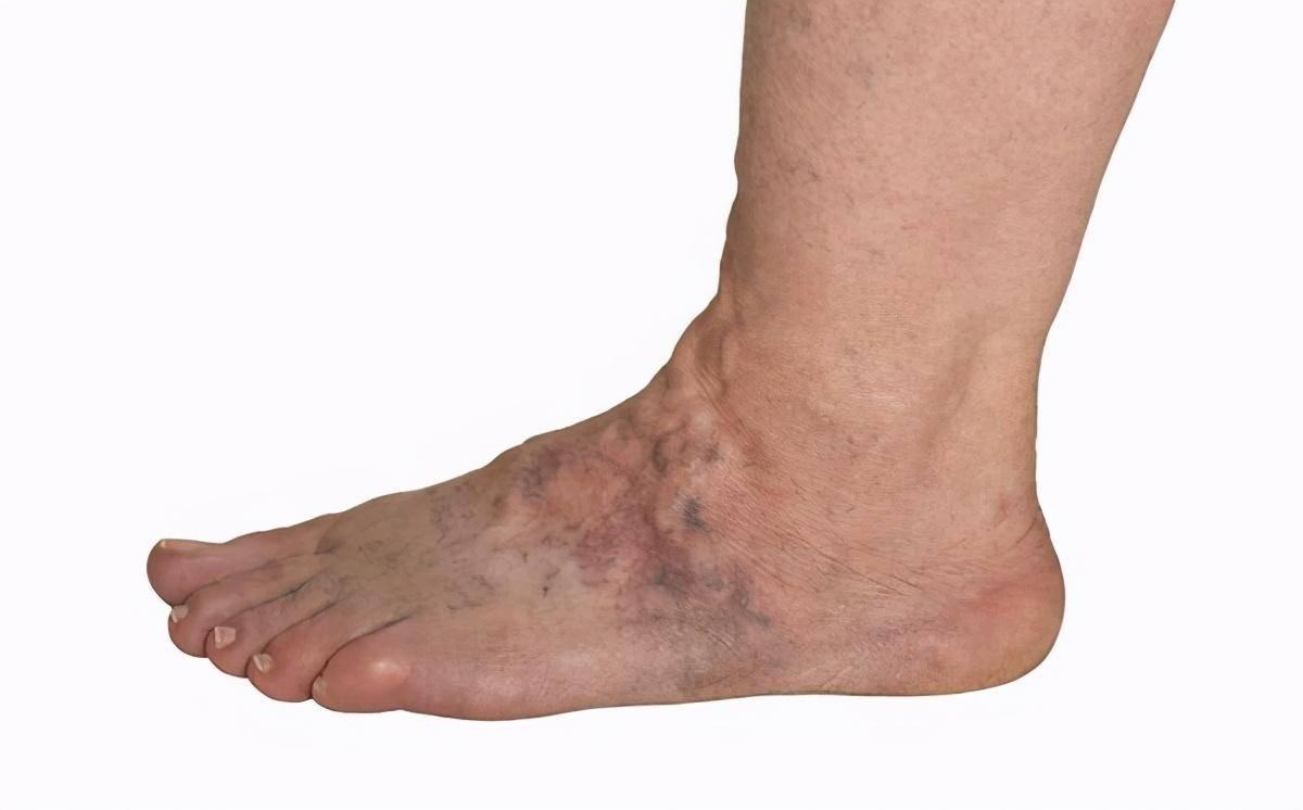 """血管堵塞,双腿先知?腿部若有这5种""""迹象"""",提醒你该疏通血管"""