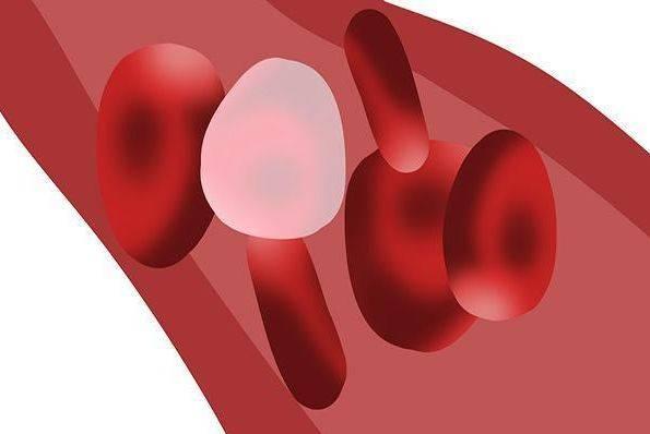 高脂血症患者早就被身体反映出来了 切记吃两个不吃 血脂会悄