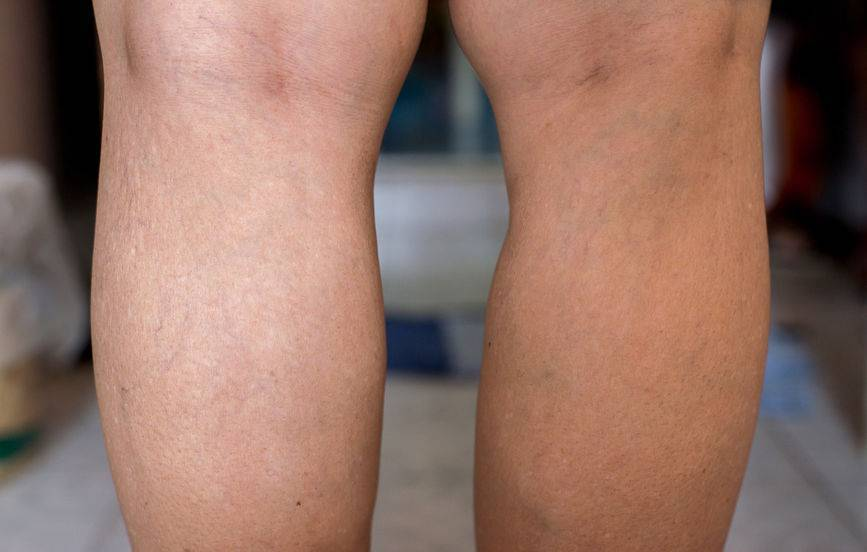 """双腿最易""""藏""""血栓!腿部的5种""""不适"""",提醒你:血管被堵了"""