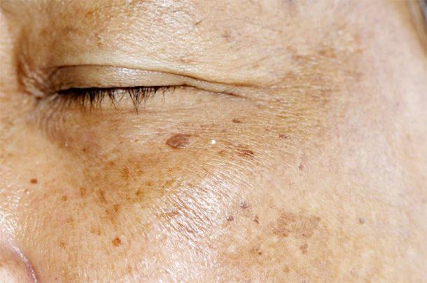 老年斑越来越多?6种方法内服加外用,老年斑少了人也自信了