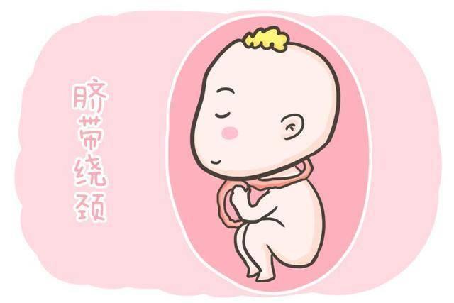 """原胎宝""""脐带绕颈""""不是准妈妈经常摸肚子造成的。不要再相信谣言了"""