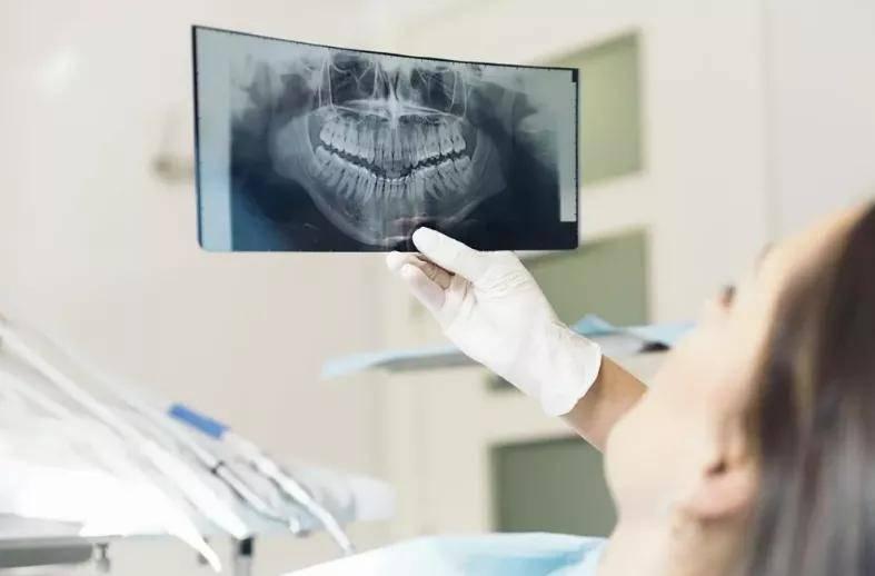 为什么看牙要拍片?担心辐射问题?  第1张