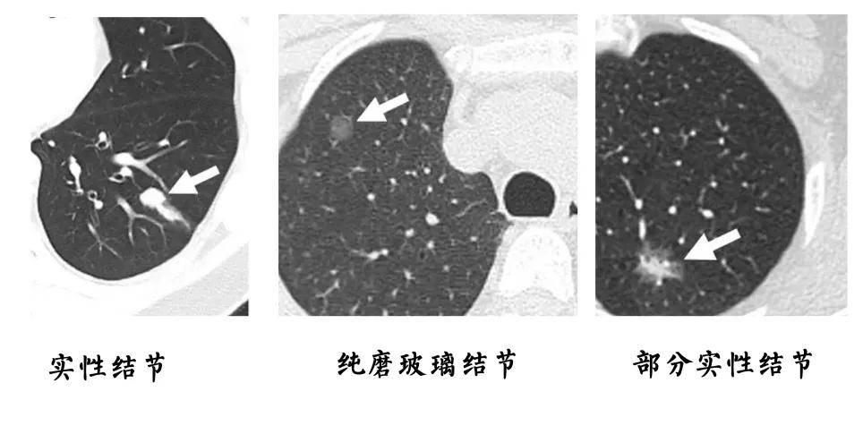 狐大医 | 体检查出肺结节很小就不用管?定期复查很重要