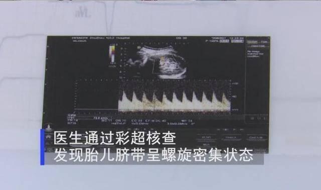 """胎宝宝在腹中会""""说话"""",4种胎动形式1个求救信号,孕妈要懂"""