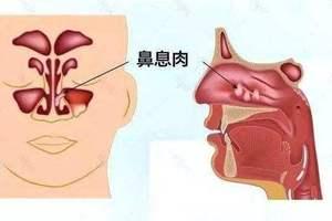 鼻息肉对人体有哪些危害|湖北市医保定点单位武汉仁安眼耳鼻喉医院图片