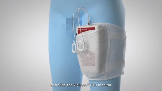 测量丁丁硬度前,Rigiscan会先绑在大腿上   GOTOP