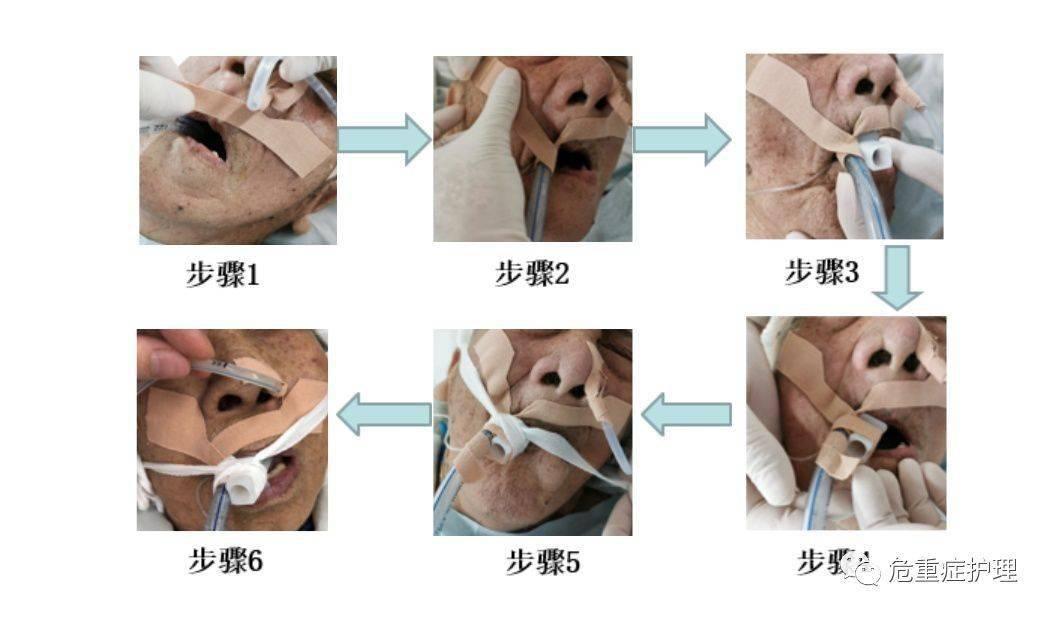 特殊病人口腔护理_特殊口腔护理思维导图(2)