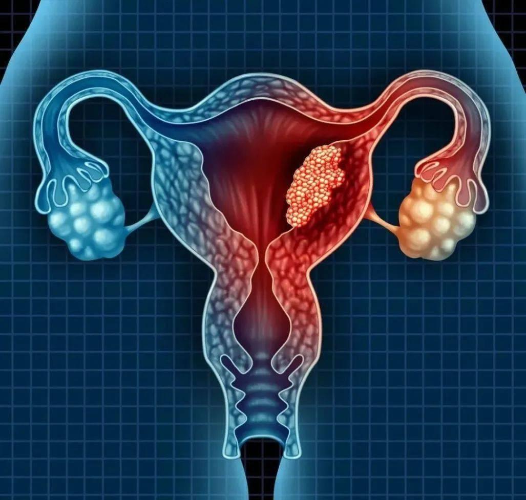 子宫腺肌症中药怎么治疗方法 子宫腺肌症吃什么中药治疗