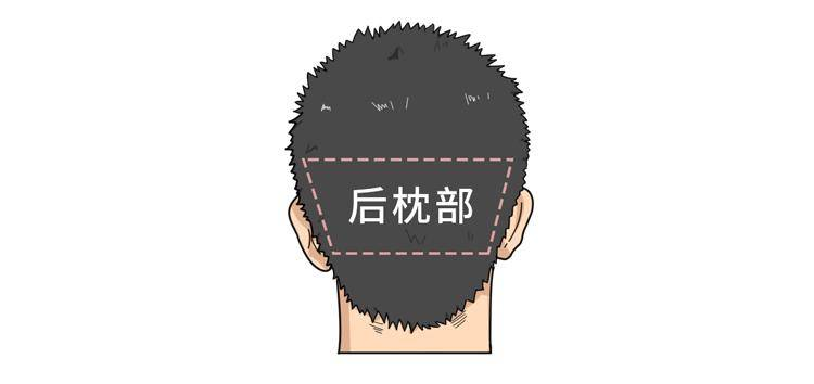 用鼻毛植发,长出来的是什么?