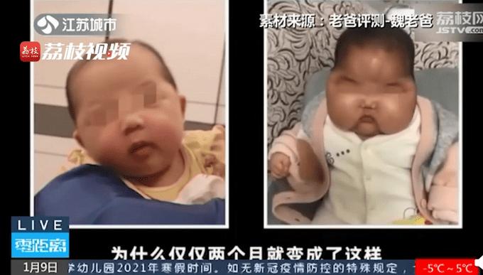 健康女婴用抑菌霜变大头娃娃,还全身长汗毛?涉事企业已停止生产  第1张