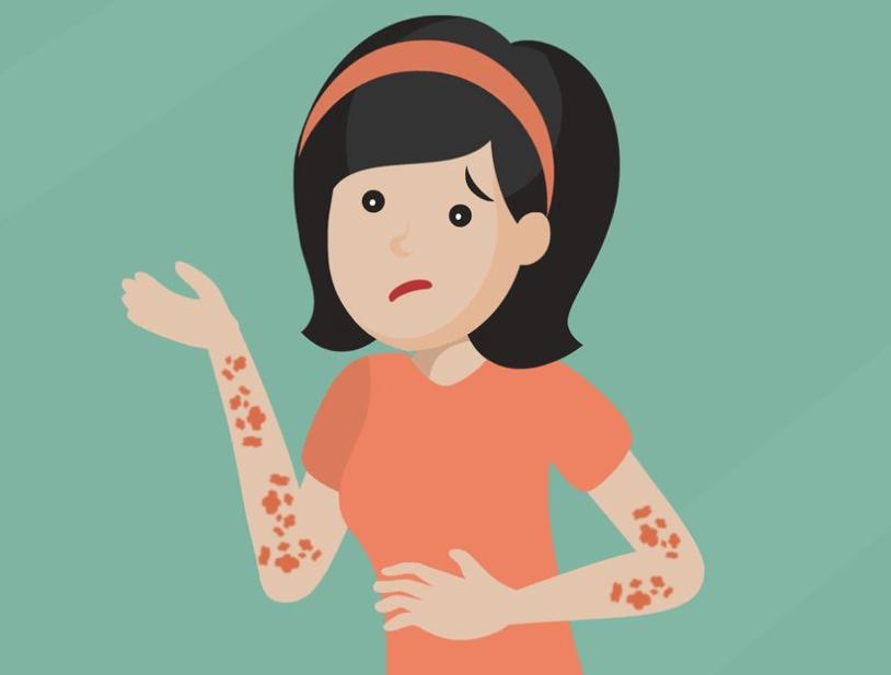 葛兰素史克带状疱疹疫苗上市,用于50岁及以上成人预防带状疱疹