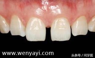 牙齿有缝怎么弄?门牙有缝怎么办?给你几个解决办法