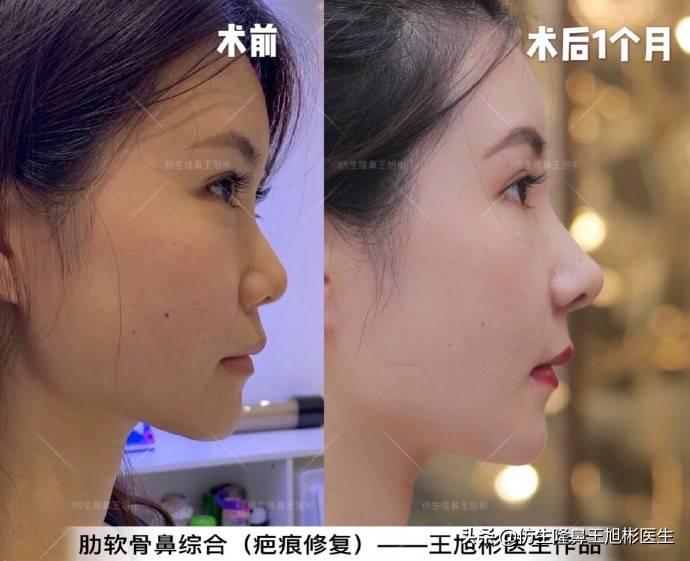 鼻头变小多少钱(缩小鼻子手术安全吗)插图(9)
