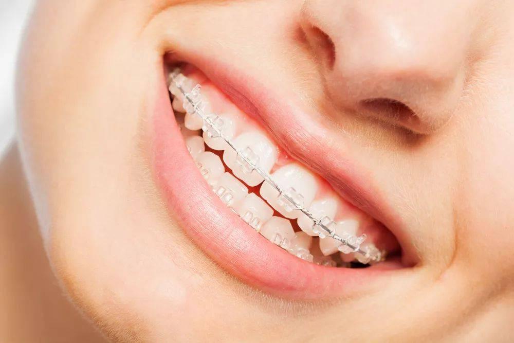 牙套多少钱一副(矫正牙齿贵吗)插图(1)