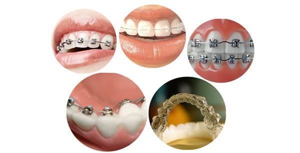 矫正牙齿的费用是多少(矫正牙齿的利与弊)插图