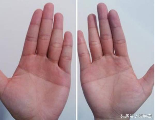 断掌纹的人寿命(手纹是断掌好不好)