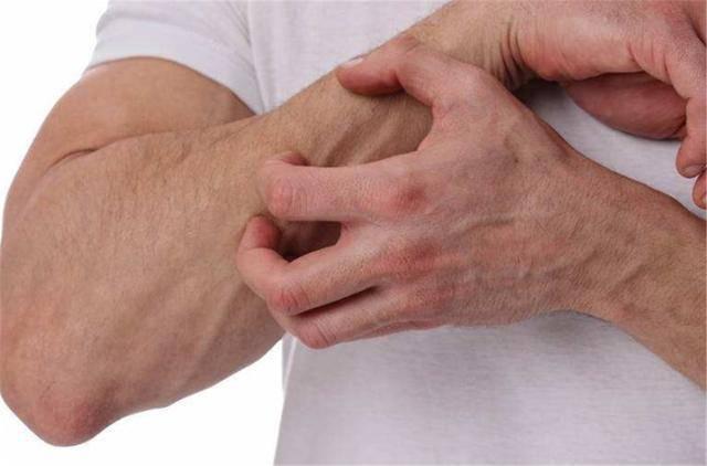 皮肤经常瘙痒难忍,不一定就是皮肤病,也有可能是此5个原因