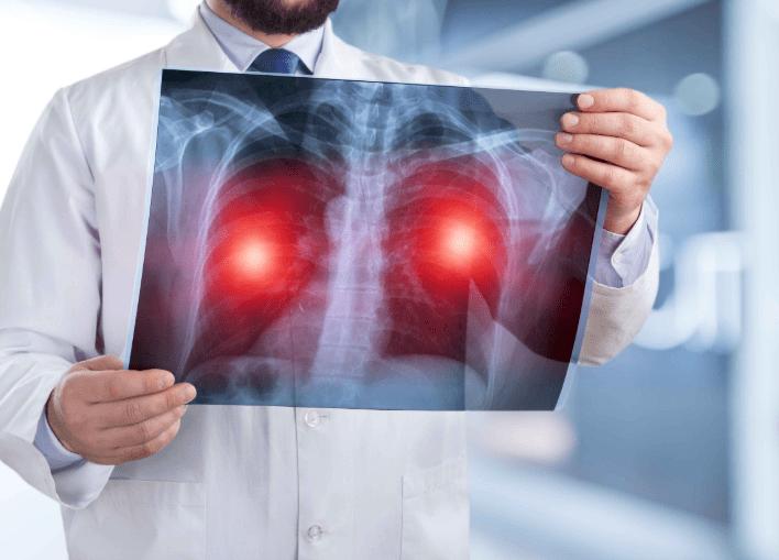 原创肺癌发现即晚期?医生叹息:身体这些异常,都是肺部癌变信号!