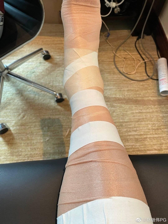 辽篮:赵继伟确诊为软组织及韧带的损伤 需治疗3-4周_胡明轩