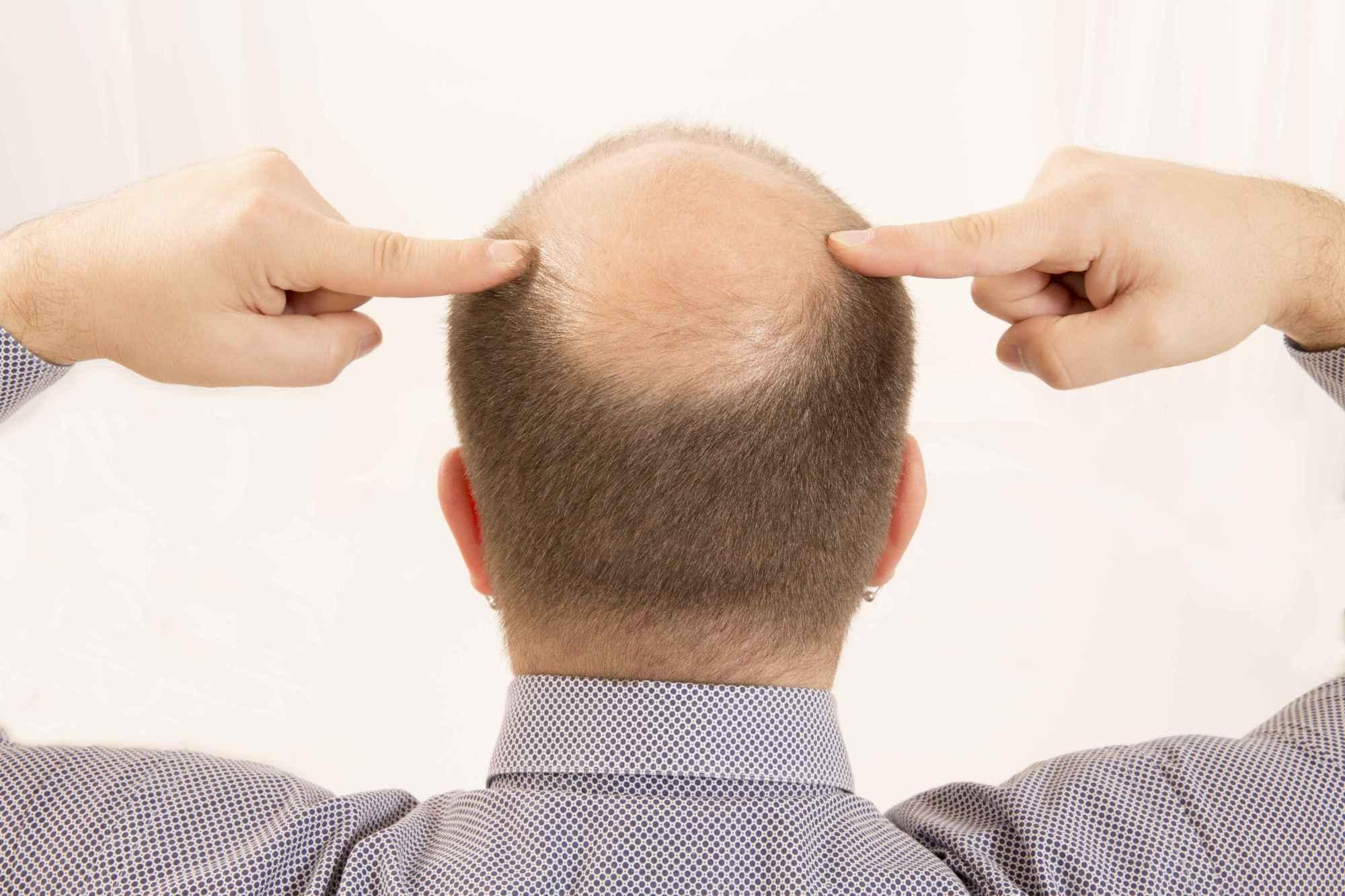 狐狸医生|生姜何首乌洗发水防脱发?常见脱发问题八问八答