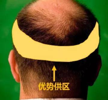 华西科普 | 盲目靠植发治疗脱发?这些加重脱发的操作要警惕