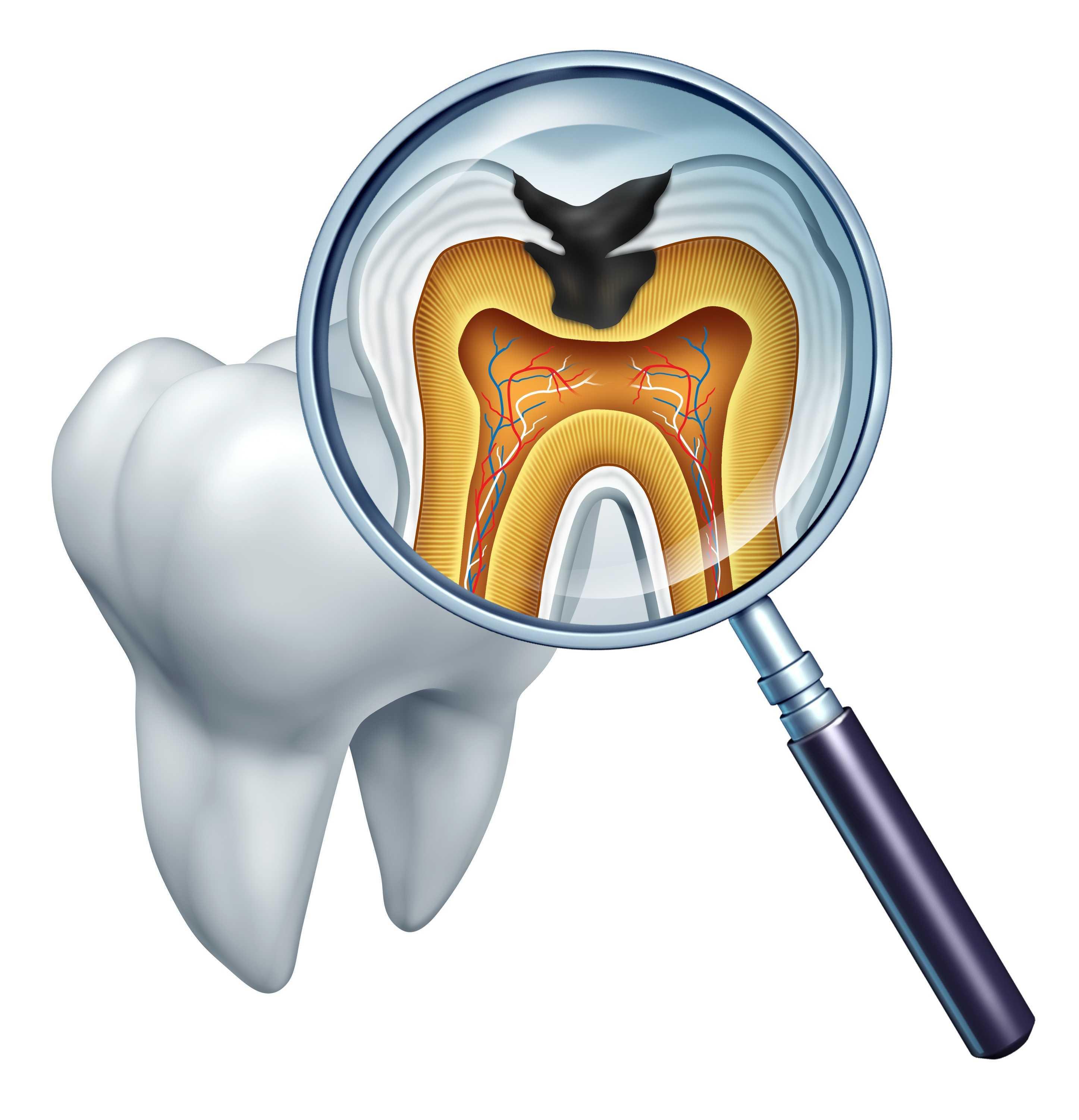 缓解治疗牙齿疼痛的特效穴位  牙疼穴位图解大全