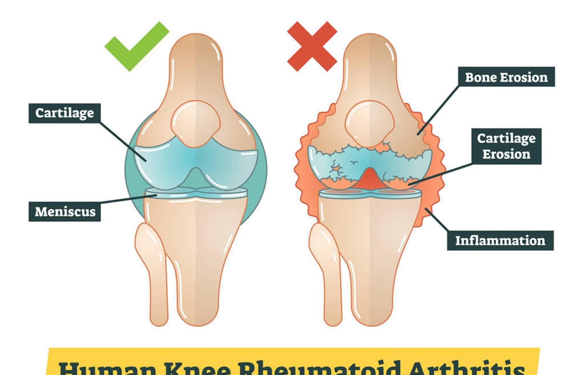 中医提醒:滑膜炎并不难治,一把花椒就能消除积液,膝盖更轻松  滑膜炎最佳治疗偏方8种