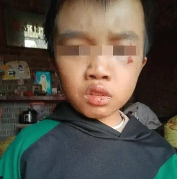 痛心!江西一12歲男童被父母家暴,用繩子吊起后暴打致死,已刑拘