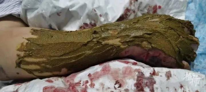 63岁大伯抓毒蛇泡药酒,反被咬一口!他立马用嘴吸伤口,最后躺进了医院……