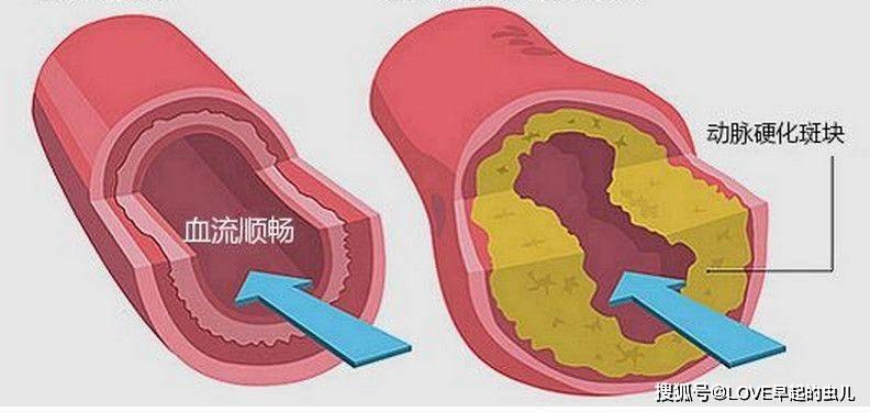 血脂高的人,身體這四個地方都不正常,早知早預防!
