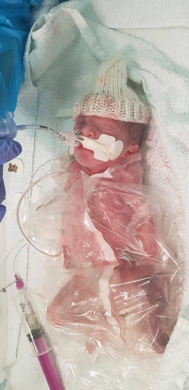 早产3个月的龙凤胎迎来生日 为模仿妈妈的子宫曾被裹在食品袋里-家庭网