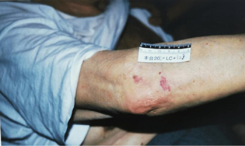 保姆殴打85岁老人被公诉 当庭播放施暴视频