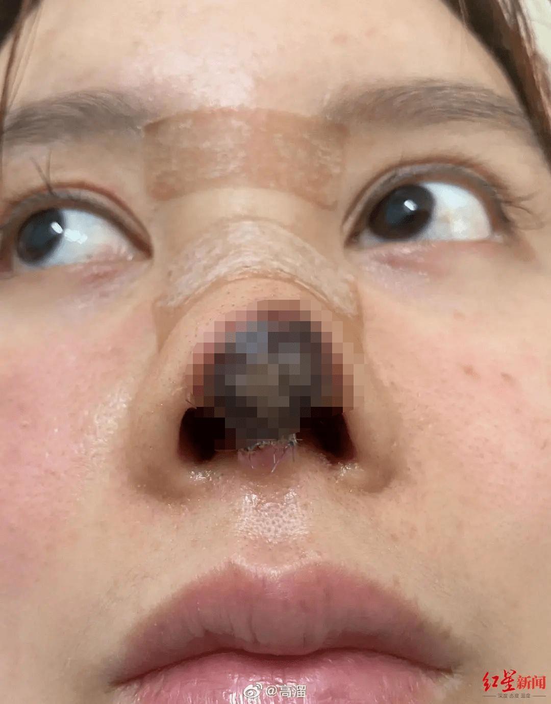 隆鼻后鼻头一侧凹图片