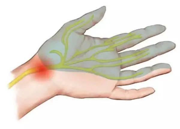 拉菲8代理:晨起手指发麻当心这几种疾病!