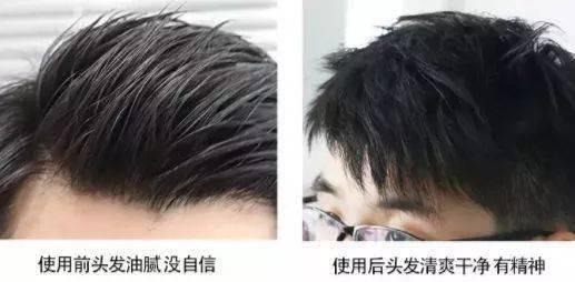 用它洗头,7天头发暴增,浓密黑亮