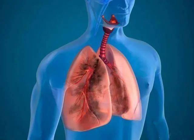 吸烟者,春季养肺,多补一物,坚持二事,按揉三处,肺好你更好